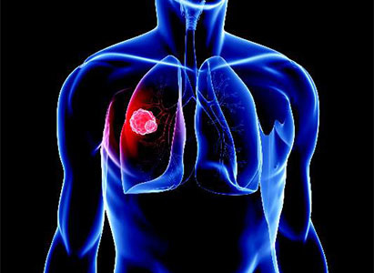 Minimally Invasive Therapy Saves Stage IV Lung Cancer Patient*