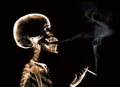 Mencegah Kanker Laring Fokus Pada Berhenti Merokok