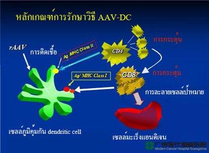 เทคนิคแบบเจาะจงเซลล์มะเร็ง ACTL,โรงพยาบาลมะเร็งสมัยใหม่กว่างโจว