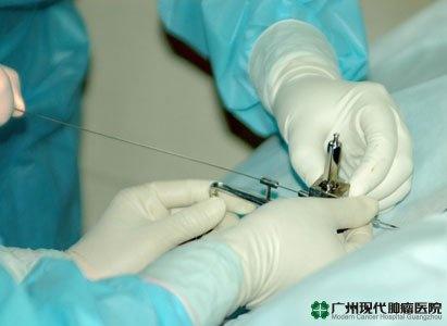pengobatan penananman biji partikel, pengobatan kanker, Modern Cancer Hospital Guangzhou