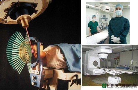 มีดโฟตอน-ฉายแสงสามมิติ,โรคมะเร็ง,โรงพยาบาลมะเร็งสมัยใหม่กว่างโจว