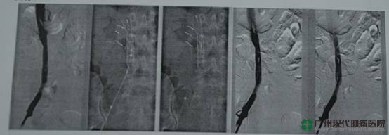 kanker serviks, trombosis vena dalam, Modern Cancer Hospital Guangzhou China
