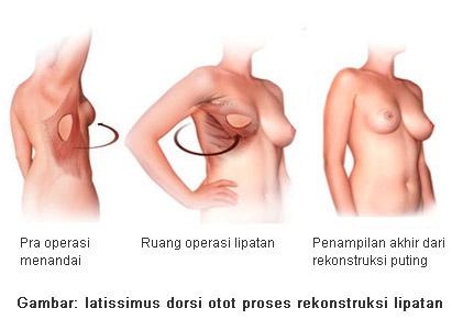rekonstruksi payudara (Breast Reconstruction), kanker payudara