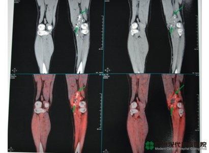 ورم العضلات من بطّة الأمعاء و علاج المينيملي و مستشفى الأورام الحديث قونغ جون