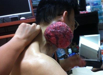 Kanker laring, pengobatan kanker laring, Intervensi, Modern Cancer Hospital Guangzhou