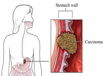 Stomach Cancer Treatment