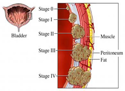Bladder Cancer Treatment, Bladder Cancer