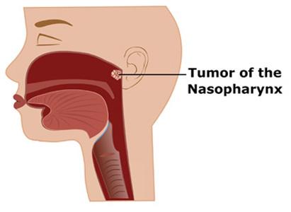 鼻咽癌Q&A