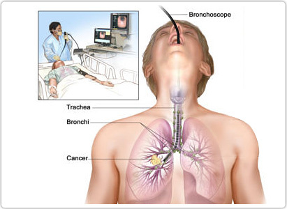 Diagnosis of lung cancer,lung cancer diagnosis,Modern Cancer Hospital Guangzhou