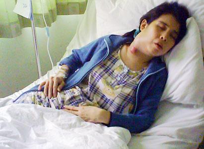 Modern Cancer Hospital Guangzhou, Limfoma, Pengobatan Limfoma, Terapi Intervensi, Pengobatan Minimal Invasif
