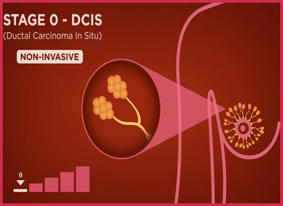 Ductal Carcinoma In Situ (DCIS), Modern Cancer Hospital Guangzhou, pengobatan kanker payudara
