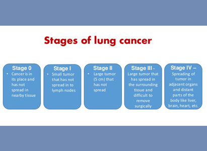 Understanding the stages of lung cancer and choose a suitable treatment plan for lung cancer at stage 1,2,3,4.