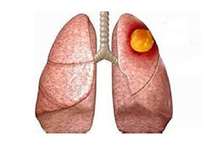 ung thư phổi điều trị ung thư, bệnh viện Ung Bướu Quảng Châu