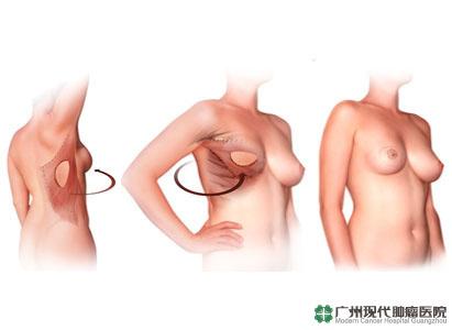 ung thư vú, tái tạo vú, điều trị ung thư vú, bệnh viện ung bướu hiện đại quảng châu