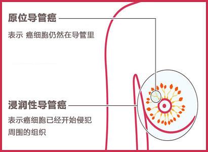 浸润性导管癌,乳腺癌治疗,广州现代肿瘤医院