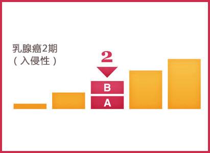 乳腺癌2期,广州现代肿瘤医院
