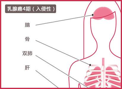 乳腺癌4期,广州现代肿瘤医院