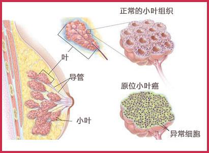 乳腺癌复发,广州现代肿瘤医院,乳腺癌治疗