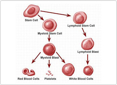 leukemia, symptoms of leukemia