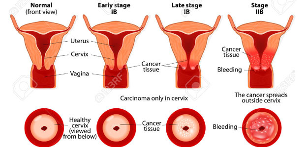 cancer,vaginal cancer, vaginal cancer symptoms, vaginal cancer diagnosis, vaginal cancer treatment