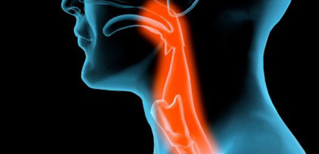 laryngeal cancer, laryngeal cancer symptoms, laryngeal cancer diagnosis, laryngeal cancer treatment