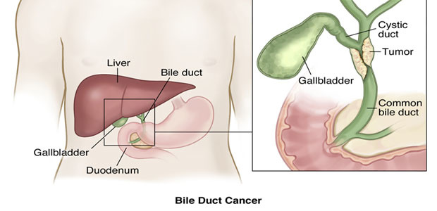 Bile Duct Cancer,Types of bile duct cancers, bile duct cancer symptoms, bile duct cancer diagnosis, bile duct cancer treatment