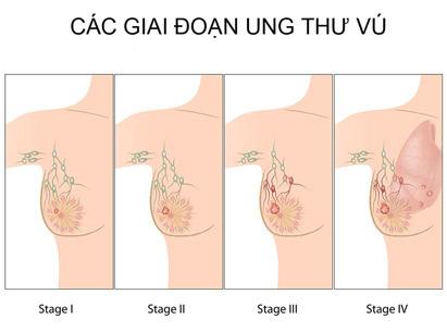 giai đoạn ung thư vú
