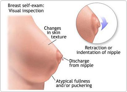 Kanker payudara, Gejala kanker payudara,ciri ciri kanker payudara,ciri ciri kanker payudara stadium akhir,ciri ciri kanker payudara stadium awal
