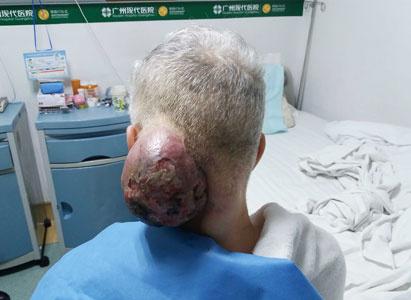 Kanker, Pengobatan kanker, Sinovial Sarkoma, Pengobatan Minimal Invasif, Microwave Ablasi (MWA), St. Stamford Modern Cancer Hospital Guangzhou