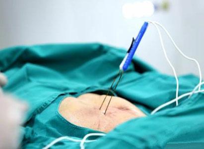 癌症,癌症治疗,纳米刀,3D打印粒子植入术,母亲节