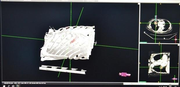 Bệnh Viện Ung Thư St.Stamford Quảng Châu, kĩ thuật cấy hạt phóng xạ mô hình khuôn in 3D, điều trị xâm lấn tối thiểu, ung thư