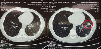 Điều trị ung thư, ung thư cổ tử cung, ung thư cổ tử cung tế bào tuyến, điều trị xâm lấn tối thiểu, điều trị can thiệp, điều trị dao lạnh, Bệnh viện Ung thư St. Stamford Quảng Châu