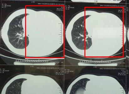 癌症治疗,宫颈癌, 宫颈腺癌,微创疗法,介入治疗,冷冻治疗,圣丹福广州现代肿瘤医院
