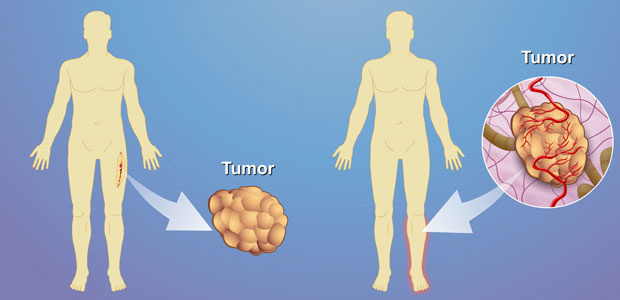 Soft tissue tumors,Soft Tissue Cancer Diagnosis