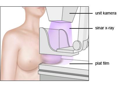 Kanker payudara, Diagnosa kanker payudara, Stadium kanker payudara, Pengobatan stadium kanker payudara, St. Stamford Modern Cancer Hospital Guangzhou, Microwave Ablation (MWA)