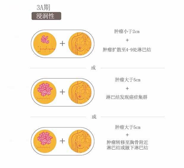 乳腺癌分期,乳腺癌3期,圣丹福广州现代肿瘤医院