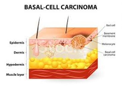 Ung thư tế bào đáy phân loại và điều trị