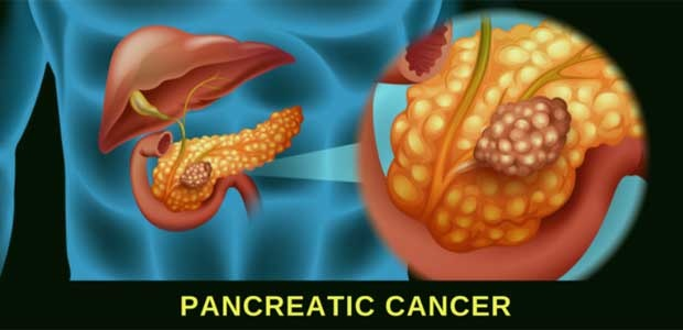 Pancreatic cancer, pancreatic cancer pathology report, St. Stamford Modern Cancer Hospital Guangzhou
