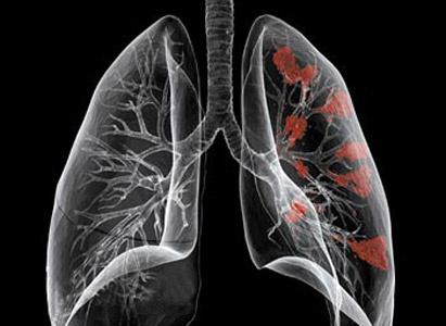 triệu chứng ung thư phổi, ung thư tuyến phổi, tìm hiểu ung thư phổi