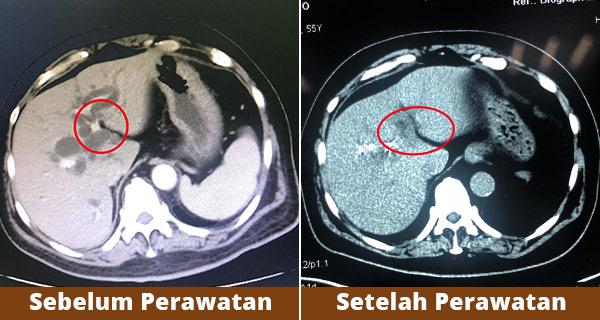 Dokter Indonesia Menyerah Dalam Pengobatan? Jangan Menyerah, Metode ...