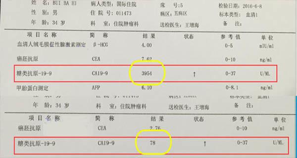Kanker Lambung, Pengobatan kanker lambung, St. Stamford Modern Cancer Hospital Guangzhou, Intervensi, Mengobati kanker di China